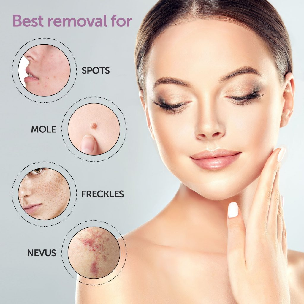 skin_tag_removal_products