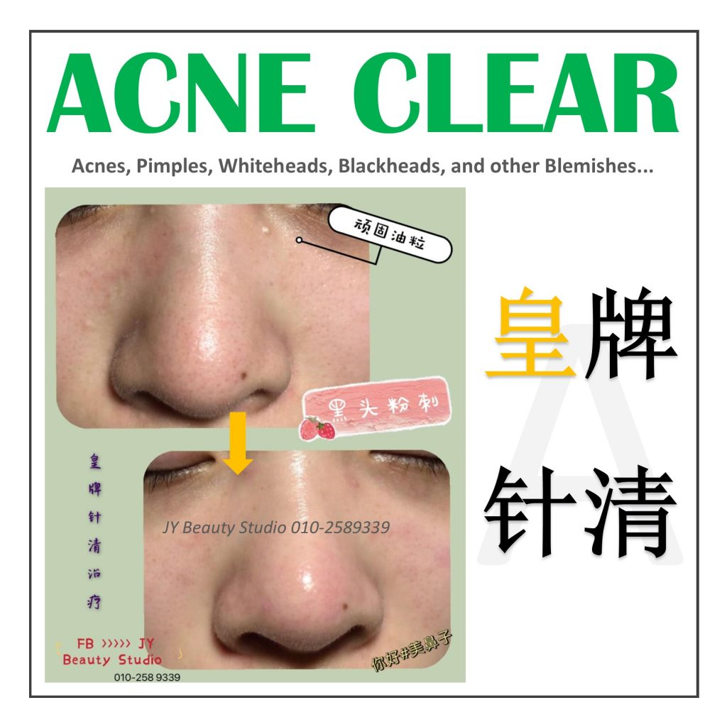 acneclear